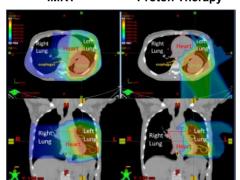 肺癌质子治疗,肺癌放疗中的高端放疗