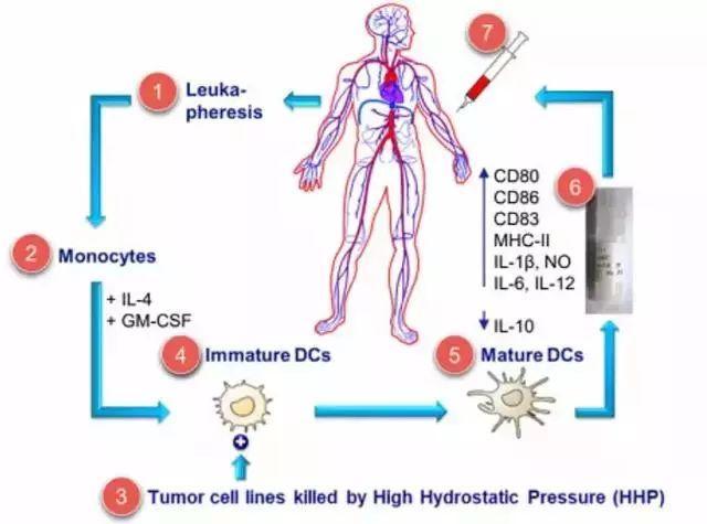 卵巢癌-DCVAC / OvCa疫苗