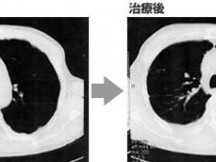 截至目前,国内、外已经获批的肺癌靶向药大全(建议收藏)