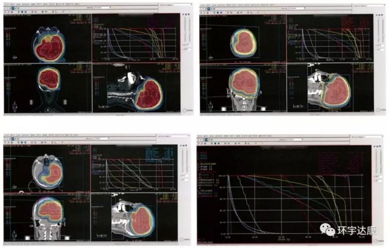 脑瘤影像图
