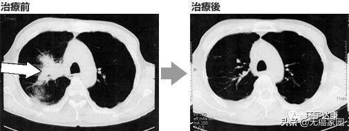 nk细胞治疗前后对比