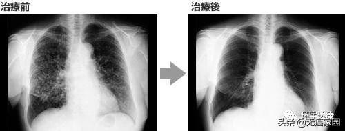 晚期肺癌,NK细胞治疗联合化疗肿瘤消失