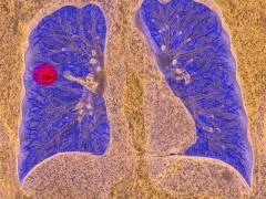喜讯!终结无药悲剧!小细胞肺癌患者将迎来免疫治疗新药