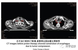 食道癌质子治疗前CT影像