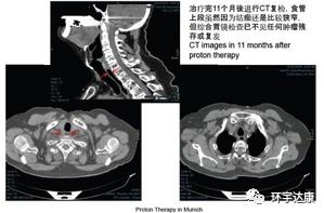 食道癌质子治疗后CT影像