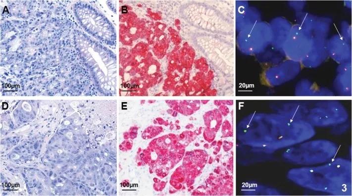 转移性结直肠癌(CRC)