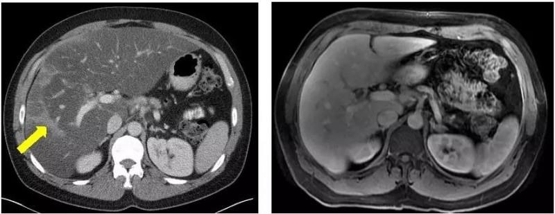 奥拉帕尼治疗后的胰腺癌影像图