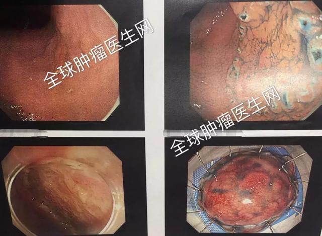 原位癌胃镜