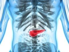 胰腺癌终遇劲敌!电场疗法联合化疗,生存期翻倍