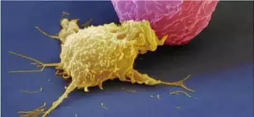 NK细胞疗法