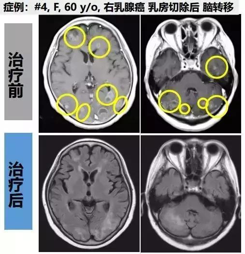 乳腺癌细胞免疫治疗前后影像