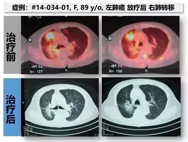 肺癌细胞免疫治疗前后影像对比