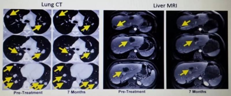 晚期胆管癌tils治疗后生存十年