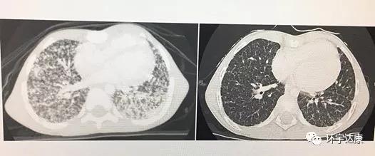 晚期甲状腺癌影像图