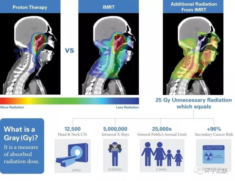 质子治疗优势