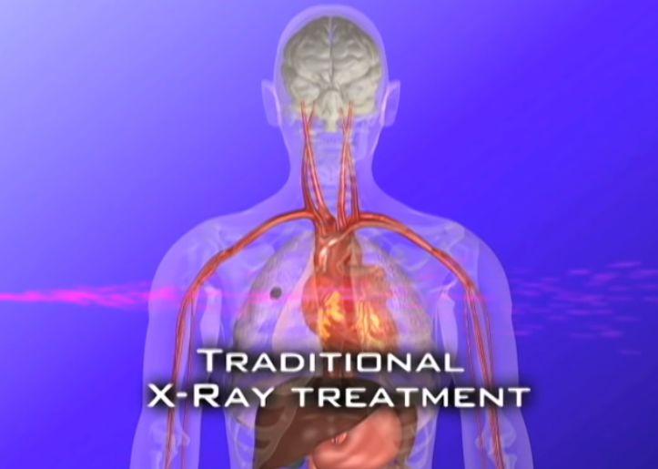 传统放疗会损伤周围组织