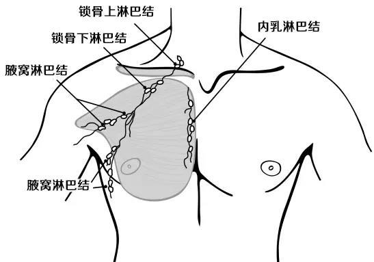 乳腺癌区域淋巴结示意图