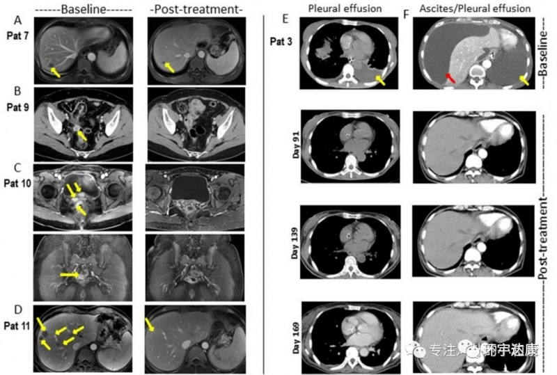 CAR-Claudin18.2 T 细胞治疗胃癌的临床前研究成果显示