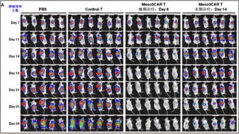 接受新型间皮素CAR-T疗法的晚期卵巢癌小鼠的肿瘤出现快速消退