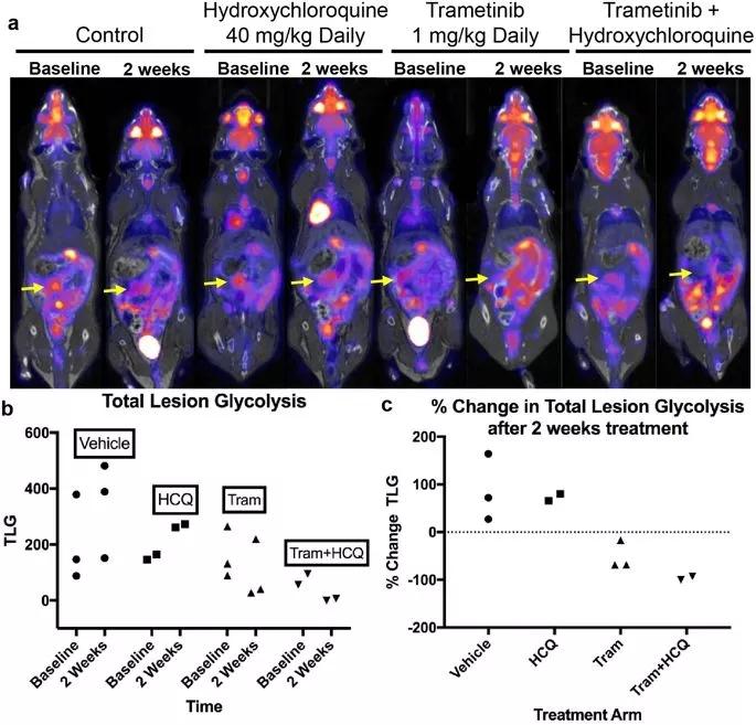 用曲美替尼和羟氯喹治疗移植了胰腺肿瘤的小鼠,结果显示肿瘤一致消退