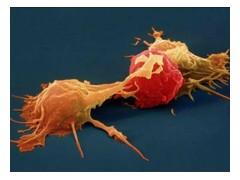 NK细胞是什么,NK免疫细胞疗法,NK细胞疗法,NK细胞治疗,,NK细胞免疫治疗,NK疗法