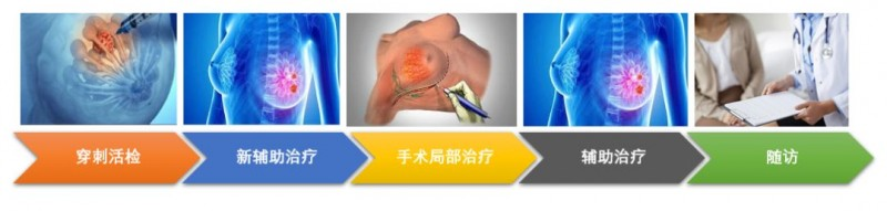 乳腺癌新辅助化疗