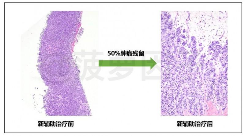 0%肿瘤残留新辅助治疗前后对比