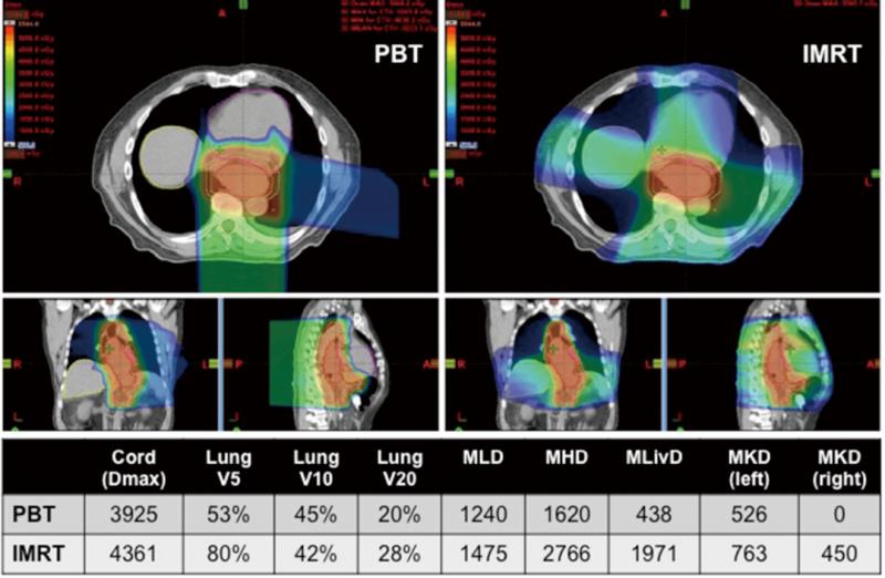 质子治疗与IMRT治疗食管癌的剂量学比较