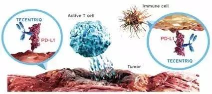 肿瘤浸润性免疫细胞