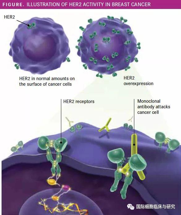胃癌最具代表性的靶点HER2