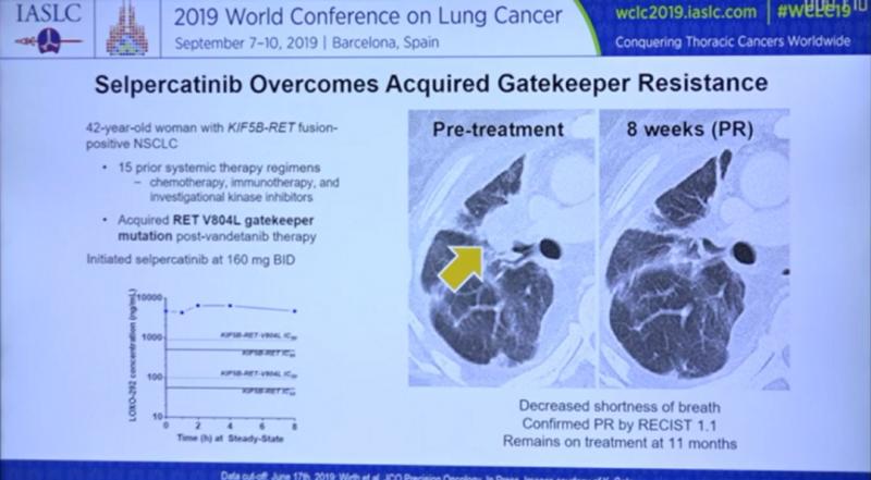 非小细胞肺癌LOXO-292治疗效果