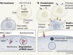 胰腺癌树突状细胞疫苗,胰腺癌树突状(DC)细胞免疫疗法,胰腺癌DC细胞治疗