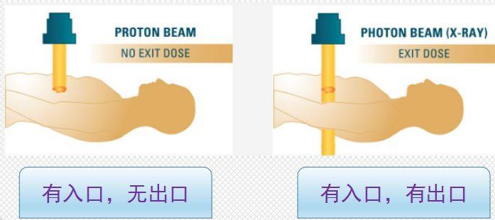 质子治疗放射剂量优势