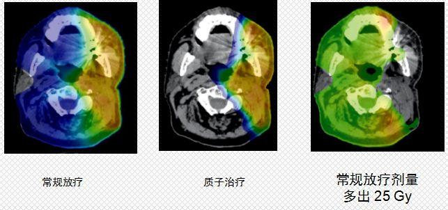 质子治疗和常规放疗放射剂量对比