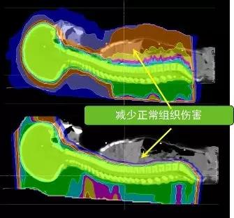 儿童髓母细胞瘤质子治疗