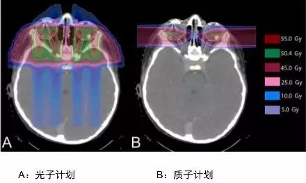 儿童视网膜母细胞瘤光子治疗和质子治疗对比