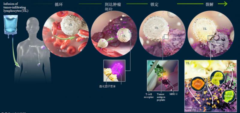 tils疗法细胞回输后杀伤癌细胞的过程