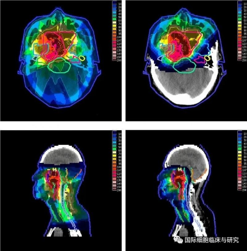 传统放射治疗与质子治疗所造成的辐射范围比较