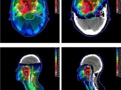 尤文氏肉瘤放疗,尤文肉瘤治疗,尤文氏肉瘤质子放疗,尤文氏肉瘤质子治疗
