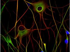 2020年脑瘤治疗,脑瘤的治疗方法,脑胶质瘤的治疗方法全球最新研究进展盘点及脑瘤临床试验推荐