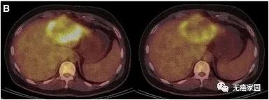 患者P9的PET、CT显示肿瘤活性明显减弱