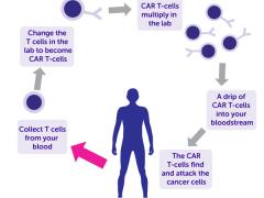 血癌、血液肿瘤、骨髓瘤、非霍奇金淋巴瘤、白血病CAR-T细胞治疗,CART治疗,CART细胞免疫疗法