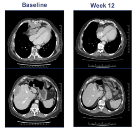 晚期滑膜肉瘤ADP-A2M4治疗效果