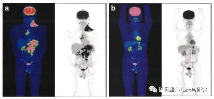 NK细胞治疗胃癌效果