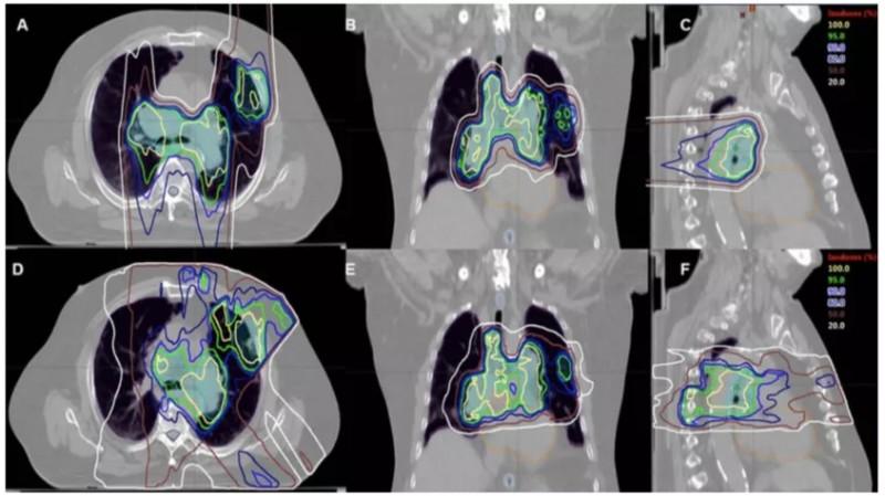 肺癌质子治疗
