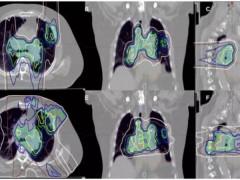 小细胞肺癌放疗,小细胞肺癌质子放疗,小细胞肺癌质子治疗