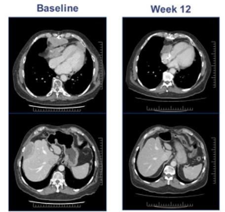 晚期滑膜肉瘤ADP-A2M4 T细胞治疗效果