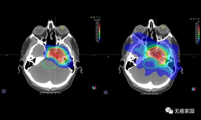 脑瘤质子放疗和传统放疗剂量对比