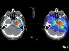 儿童脑瘤放疗,脑瘤质子放疗,脊髓瘤放疗,脊髓瘤质子放疗,脊髓瘤质子治疗