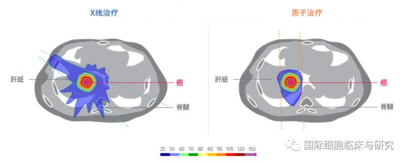 常规光子疗法与质子疗法治疗肝癌的放射剂量比较